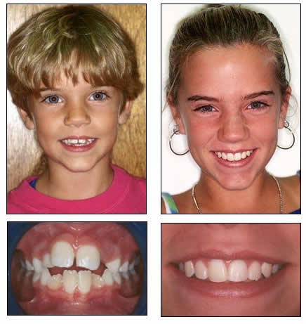 before after fjo smiles click here to see more fjo smiles